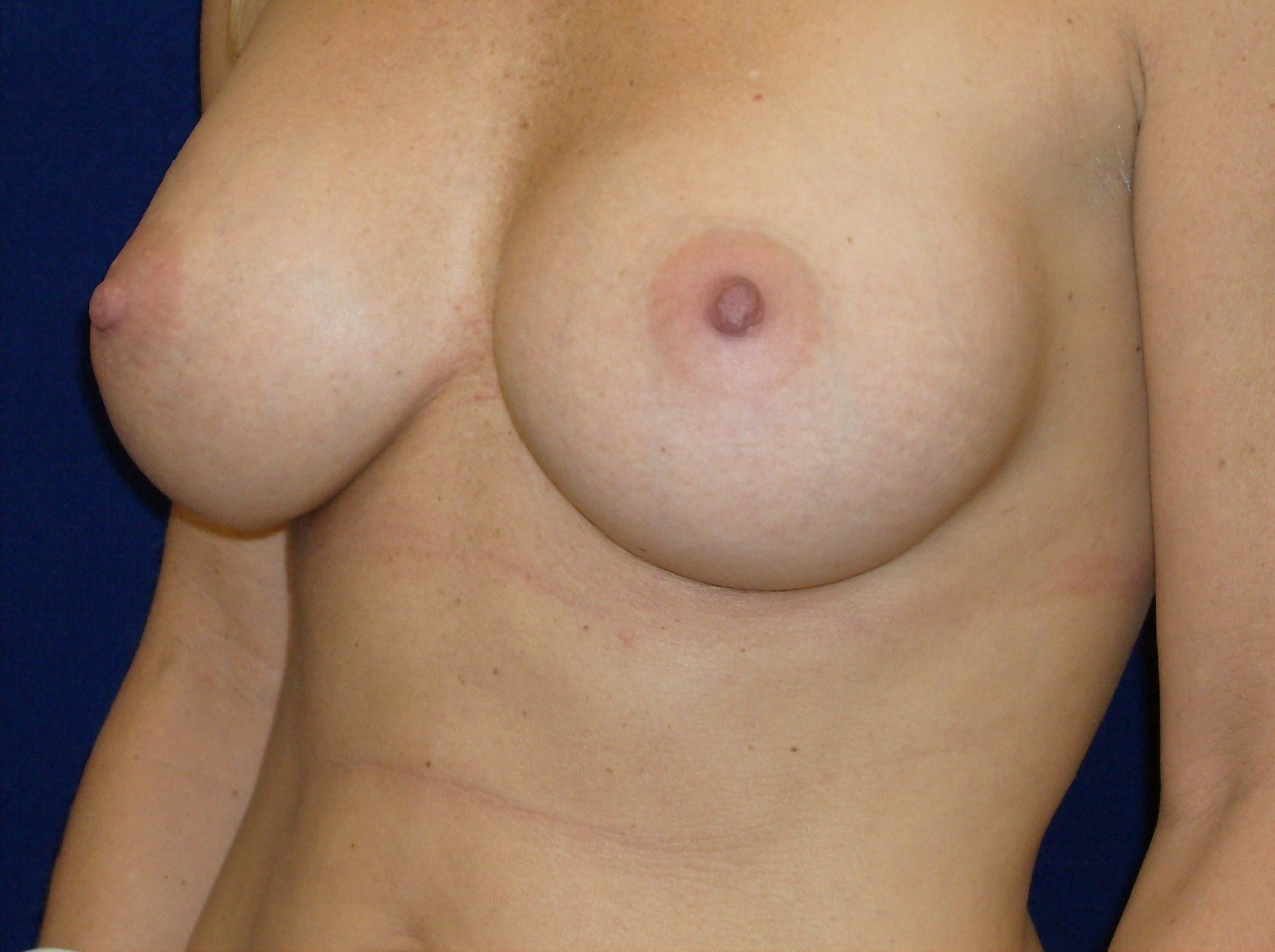 breast augmentation albuquerque nm