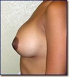 breast08-post2