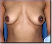 breast08-pre1