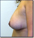 breast09-post2
