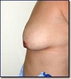 breast09-pre2