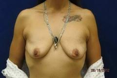 pre-breast-lift-01