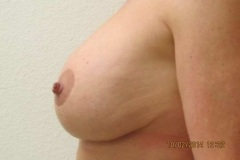 breast14-after2-01