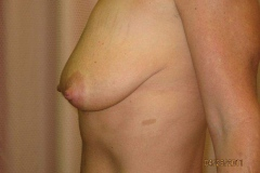 breast14-before01