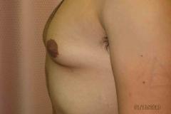 pre-gynecomastia-03
