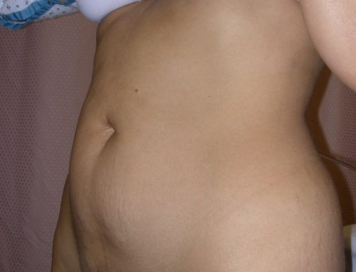 What You Should Know About Fat and Liposuction