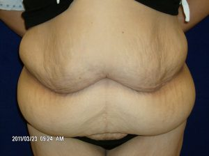Abdominoplasty Example 2