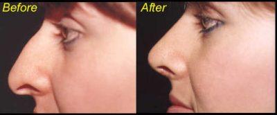 Rhinoplasty or Nose Job Example 1